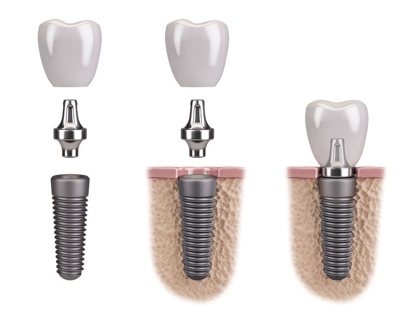 What is Dental Implant