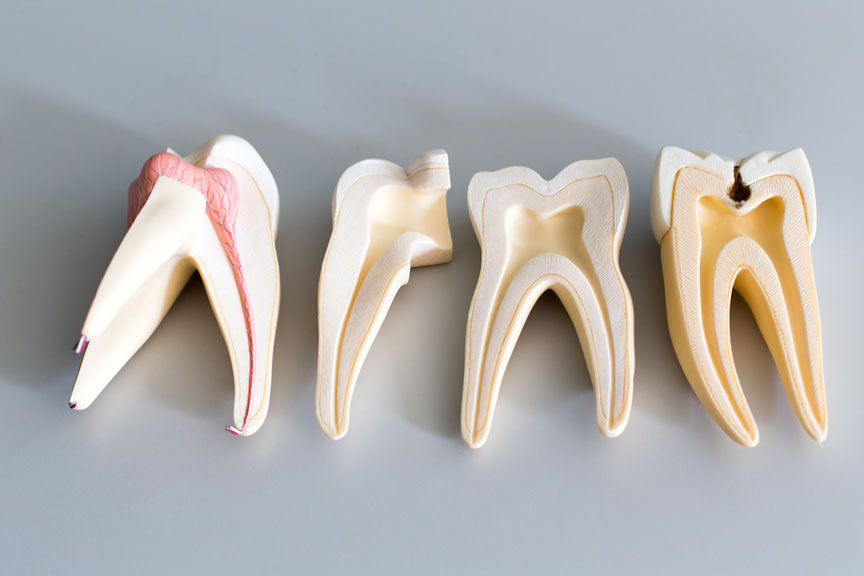 Options for Cavity Fillings - Root Canal Treatment