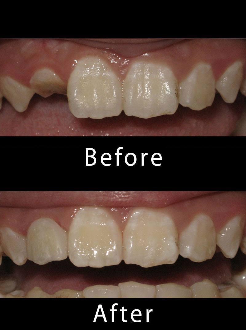 Dental Implants Before After Image