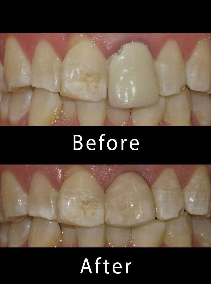Dental Veneers Before After Image