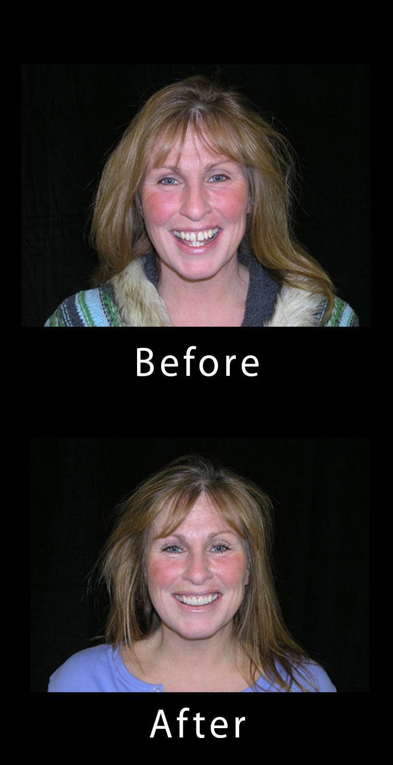 Smile Makeover Before After Image