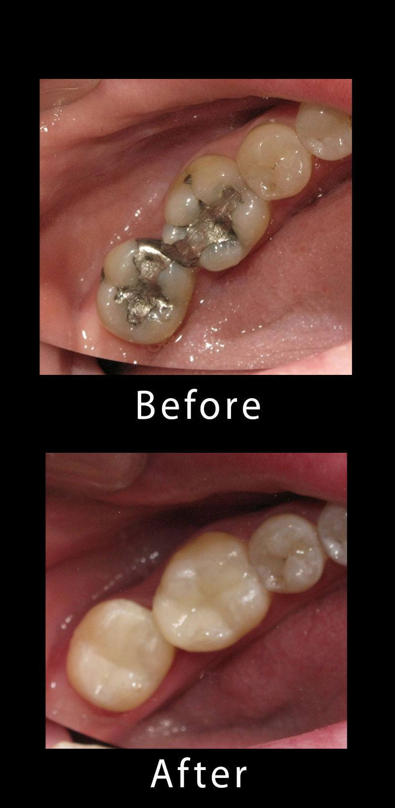 Composite Filling Before After Image