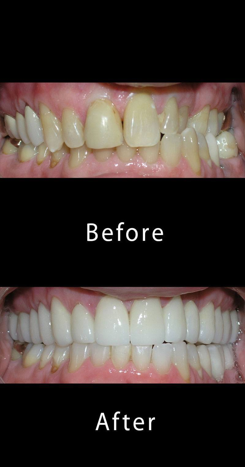 Teeth Cleaning Before After Image