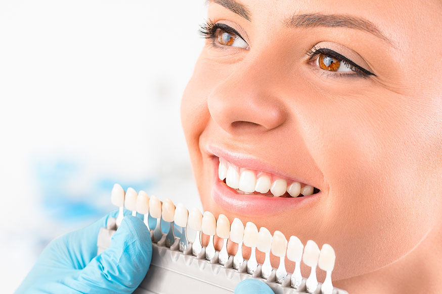 Women's Chipped Teeth Fixed with Dental Veneers in Quincy & Norwell, MA