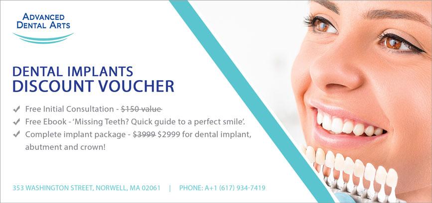 Dental Implants Discount Voucher