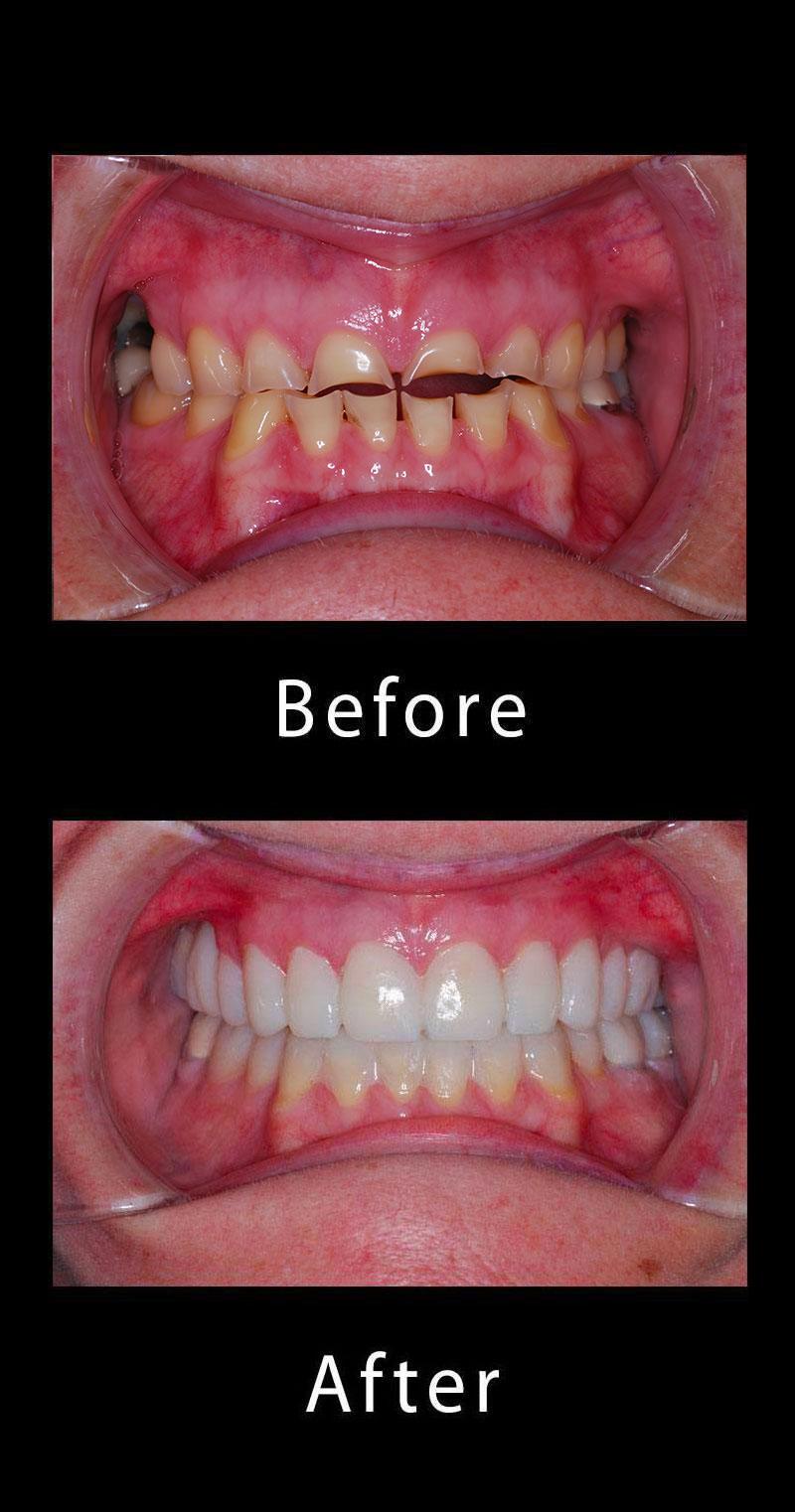 Dental Dentures Before After Image